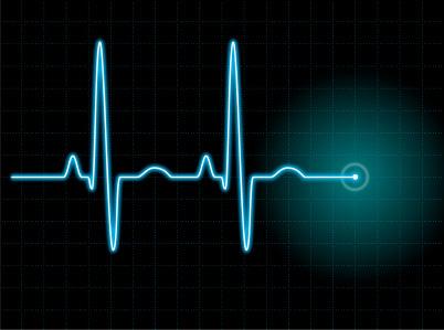 EKG i test na sidu, pa onda kredit